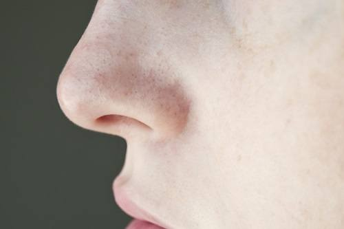 Getting Rid Of Pores On Nose